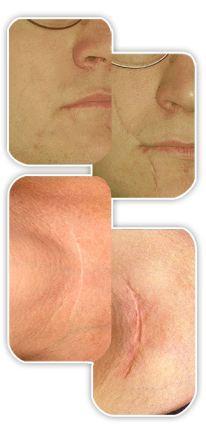 Rezultat-do-i-posle-primenenia-Derma-Cote