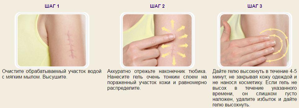 Sposob-primenenia-Derma-Kote