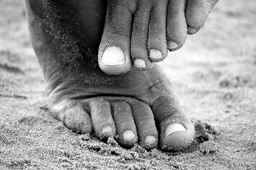 отчего отекают ноги